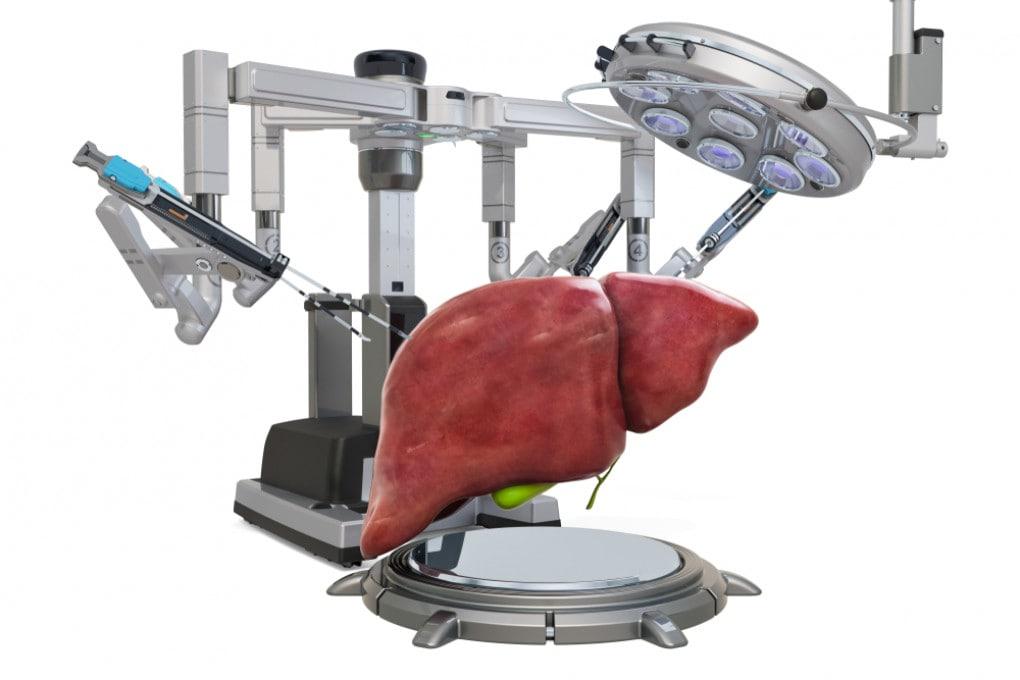 Trapianti di fegato: una macchina tiene l'organo in vita per una settimana