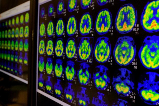 La schizofrenia collegata alla perdita di connessioni tra cellule cerebrali