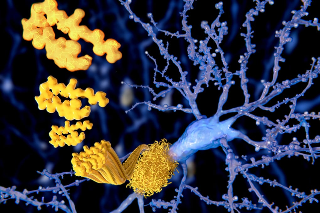 Alzheimer: placche amiloidi