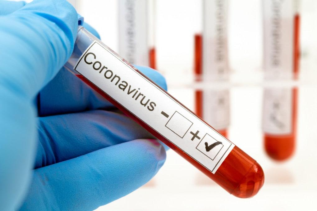 Nuovo coronavirus: si è contagiosi anche dopo la guarigione?