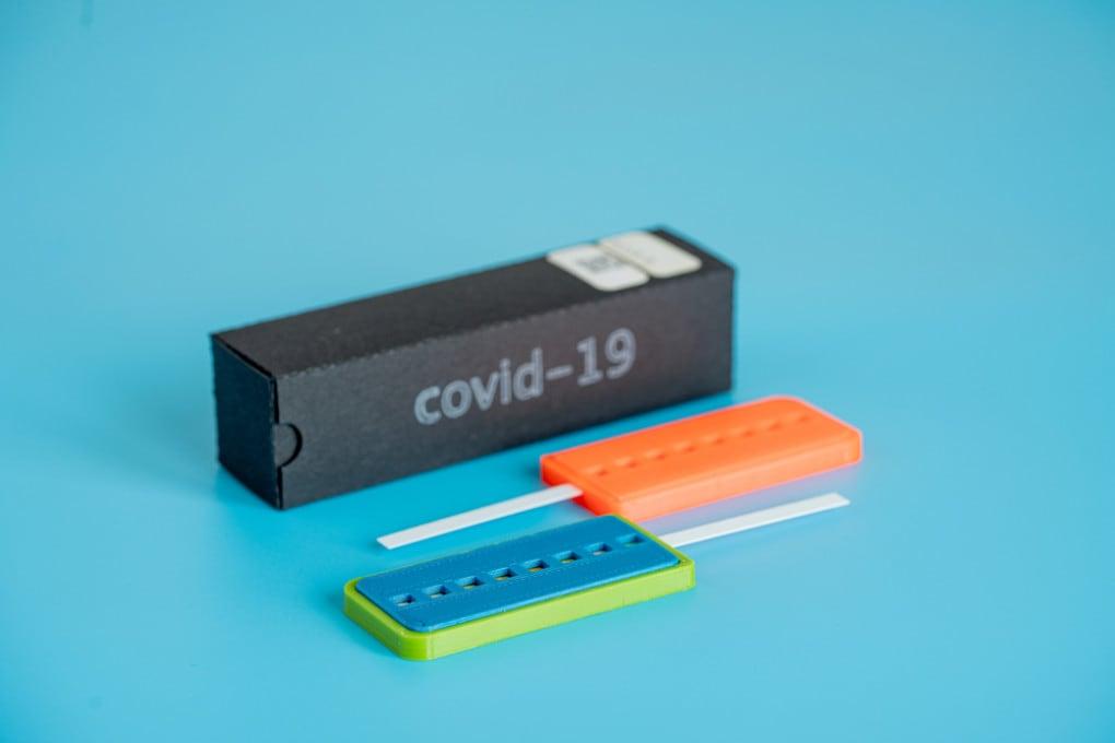 COVID-19: i test degli anticorpi cambieranno tutto?