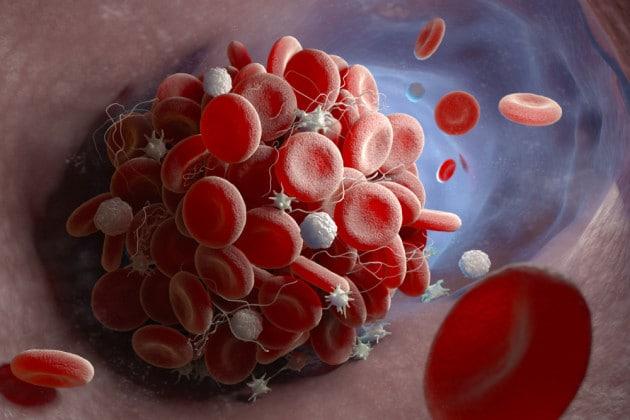 Un coagulo sanguigno in un'illustrazione medica.