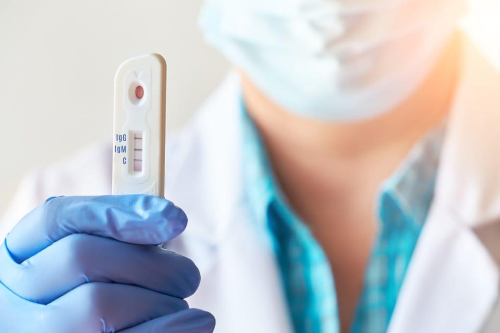 Anticorpi contro la covid: quanto dura l'immunità?