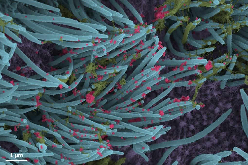 Virioni di SARS-CoV-2 invadono le cellule ciliate dell'epitelio bronchiale.