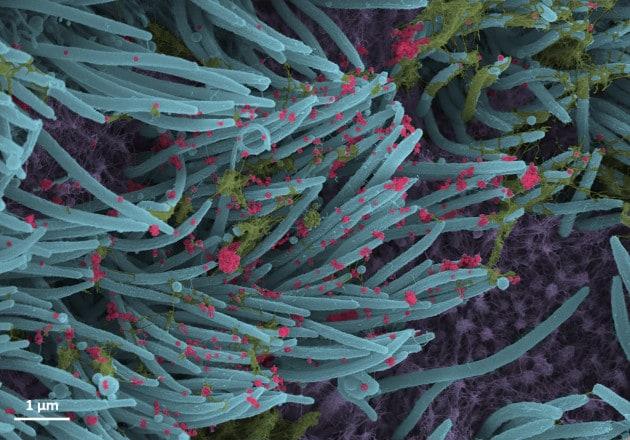 Al microscopio: l'attacco del SARS-CoV-2, il coronavirus della covid