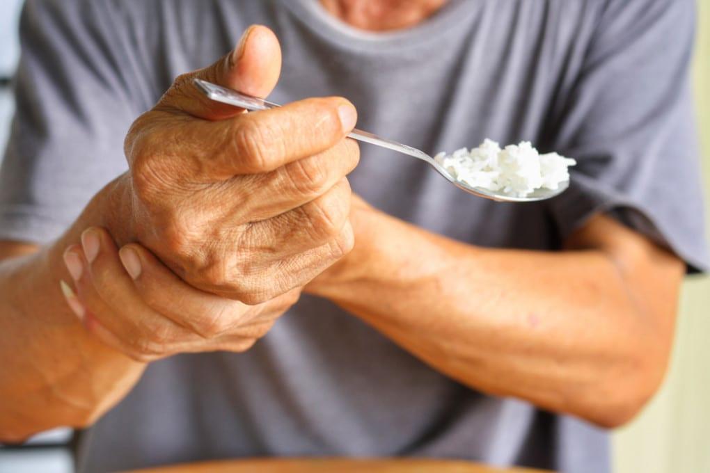 Potrebbero esistere due forme diverse di Parkinson