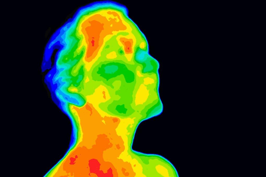 Termografia del corpo umano.
