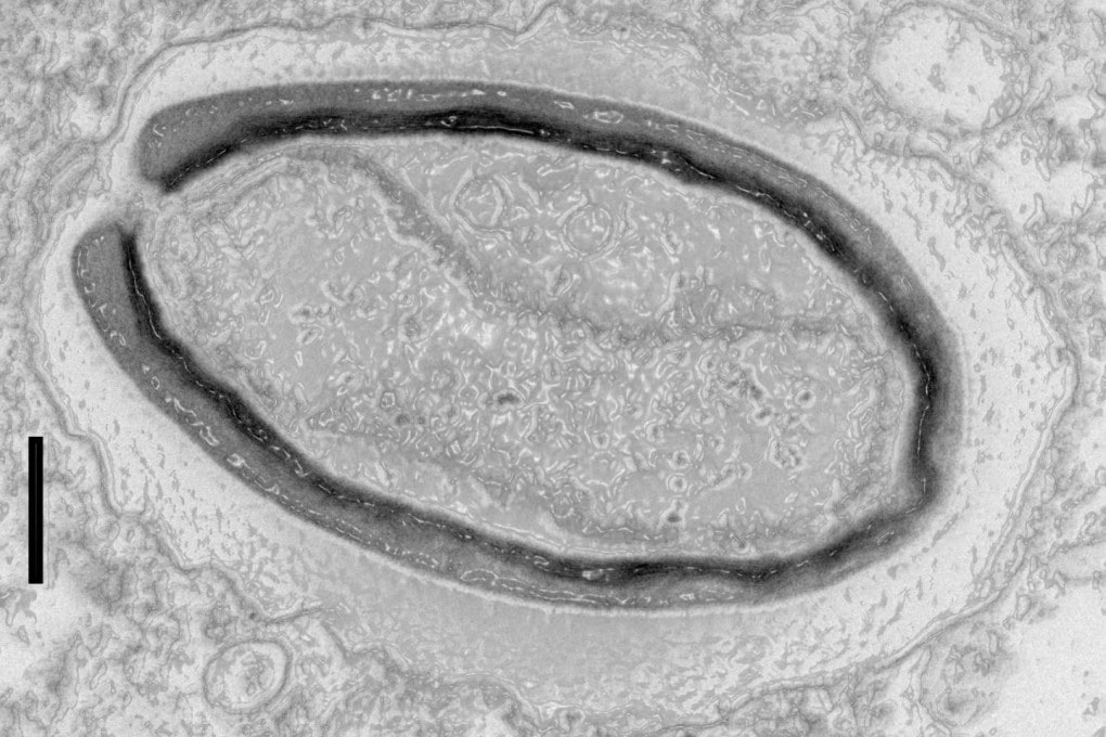 Un Pandoravirus quercus al microscopio elettronico