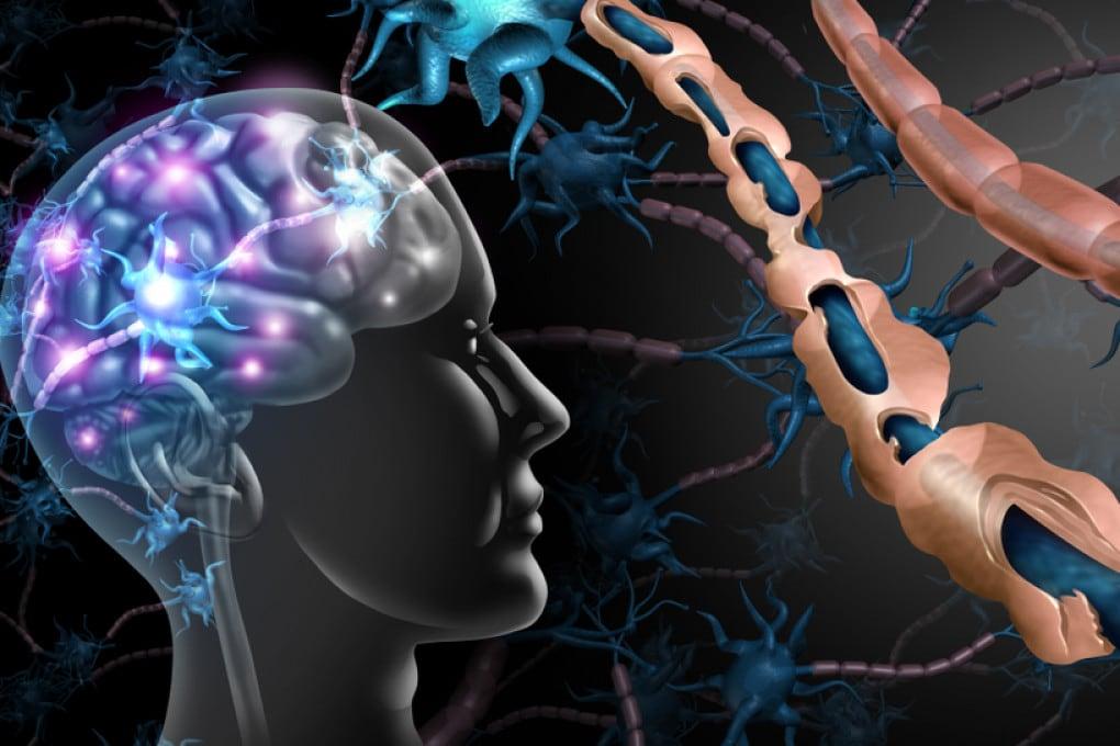 Il rivestimento a base di mielina delle cellule nervose danneggiato in un paziente con sclerosi multipla.