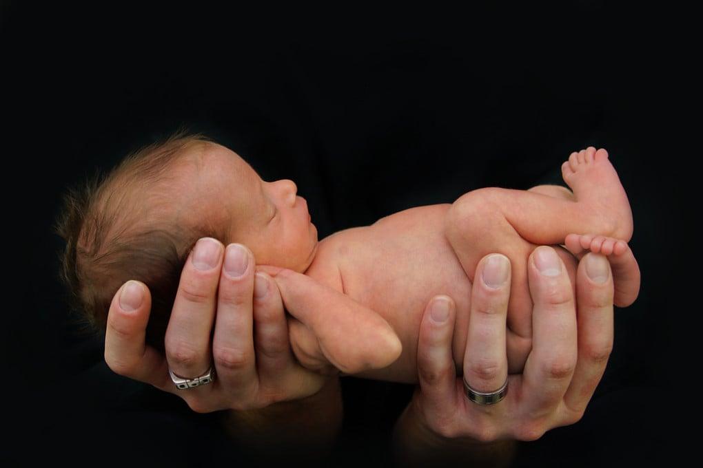 Neonato prematuro. I neonati estremamente pretermine sono quelli che pesano meno di un chilo alla nascita.