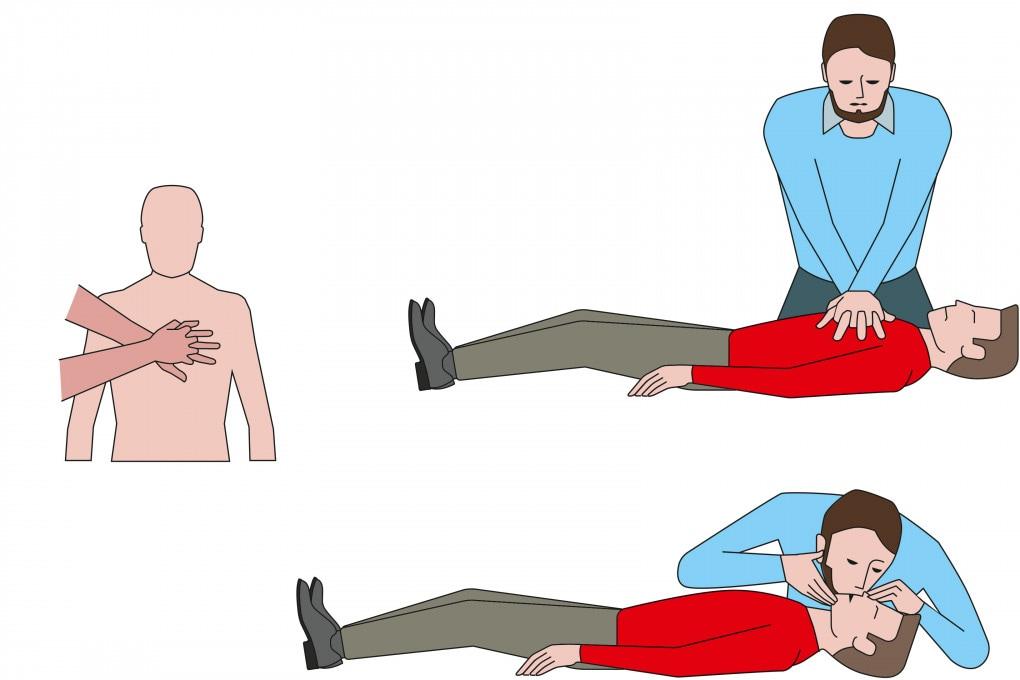 Come si fa un massaggio cardiaco o rianimazione cardiopolmonare