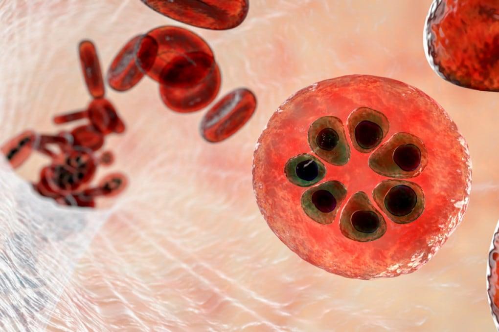 Globuli rossi infettati dal plasmodio della malaria: un'illustrazione scientifica.