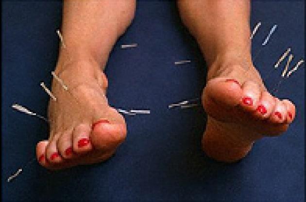 Karipain su reparto cervicale