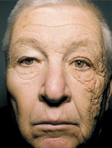 Pelle invecchiata dal sole