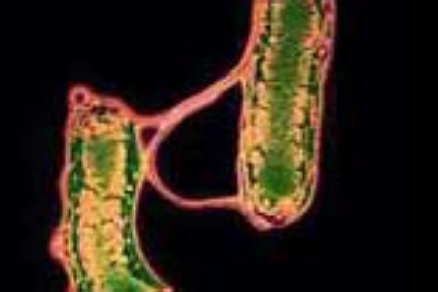 Che cosa è l'Helicobacter pylori?