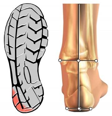 Come scegliere la scarpa per una maratona