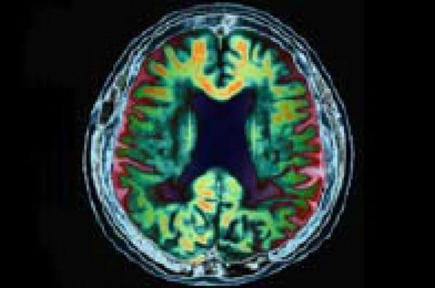Cellule staminali per riparare il cervello