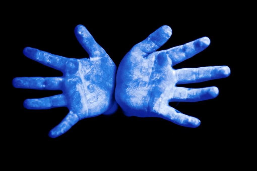 Cosa succede se tocchi il cibo con le mani sporche?
