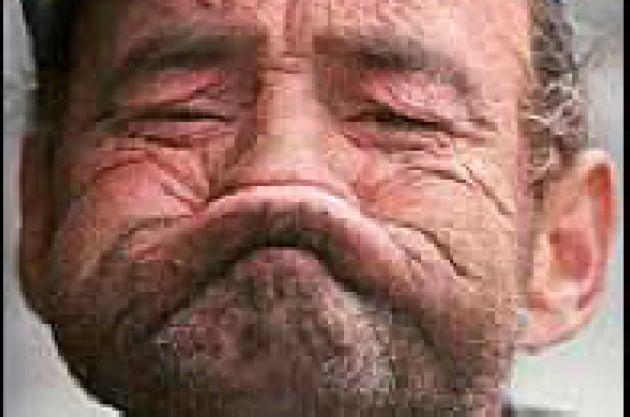 La pelle invecchia in superficie