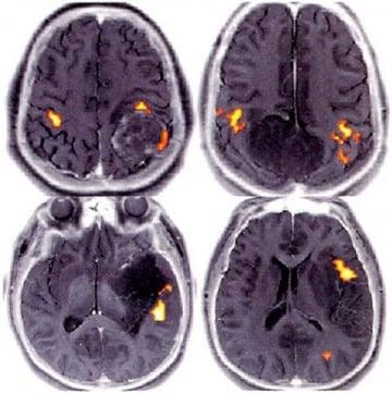 Il cervello sul banco dei testimoni