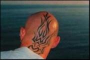 Come si leva un tatuaggio?