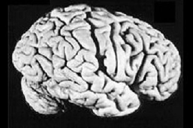 Einstein ha lasciato in eredità il suo cervello?