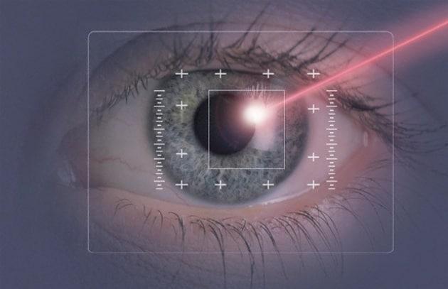 laser-occhi-iride_215927
