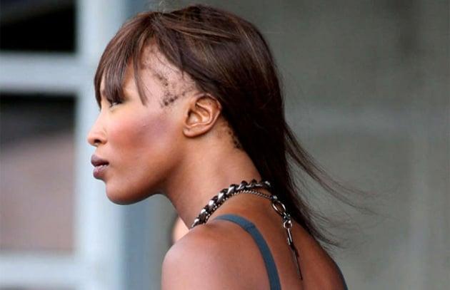 La venere nera Naomi Campbell sta perdendo i capelli