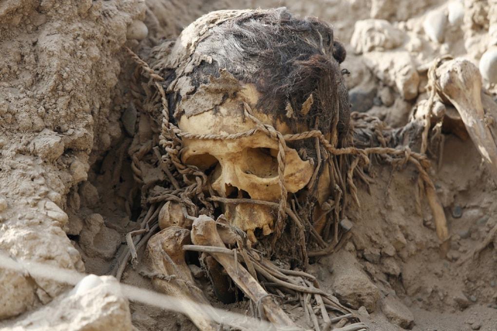 Le mummie con l'aterosclerosi e le diete degli antichi