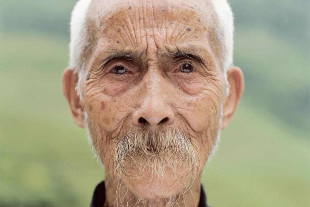 Perché le persone anziane sono così pelose?