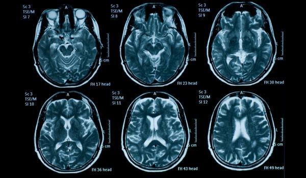 11-monitor-brain_thinkstock_149150