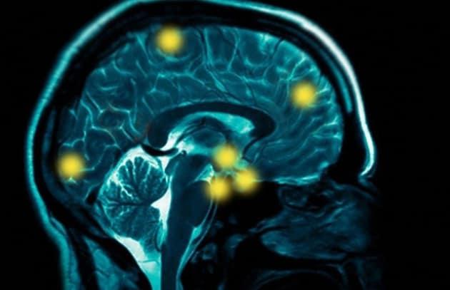 tecno-cervello_185008