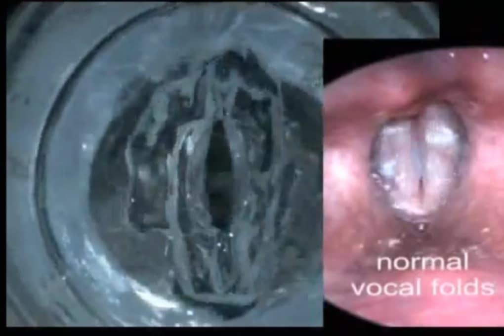 Corde vocali artificiali col gel