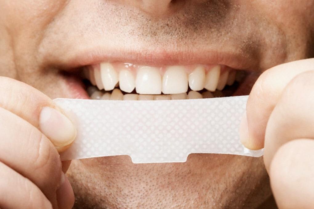 Denti protetti, bianchi e perfetti