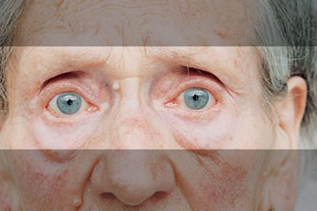 La sfida della diagnosi precoce del morbo di Alzheimer