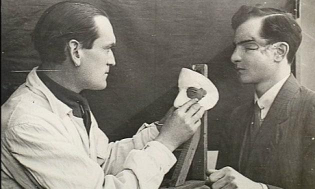 La chirurgia plastica, eredità della Grande Guerra