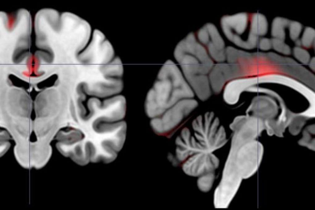 Il cervello del capo ha più materia grigia?