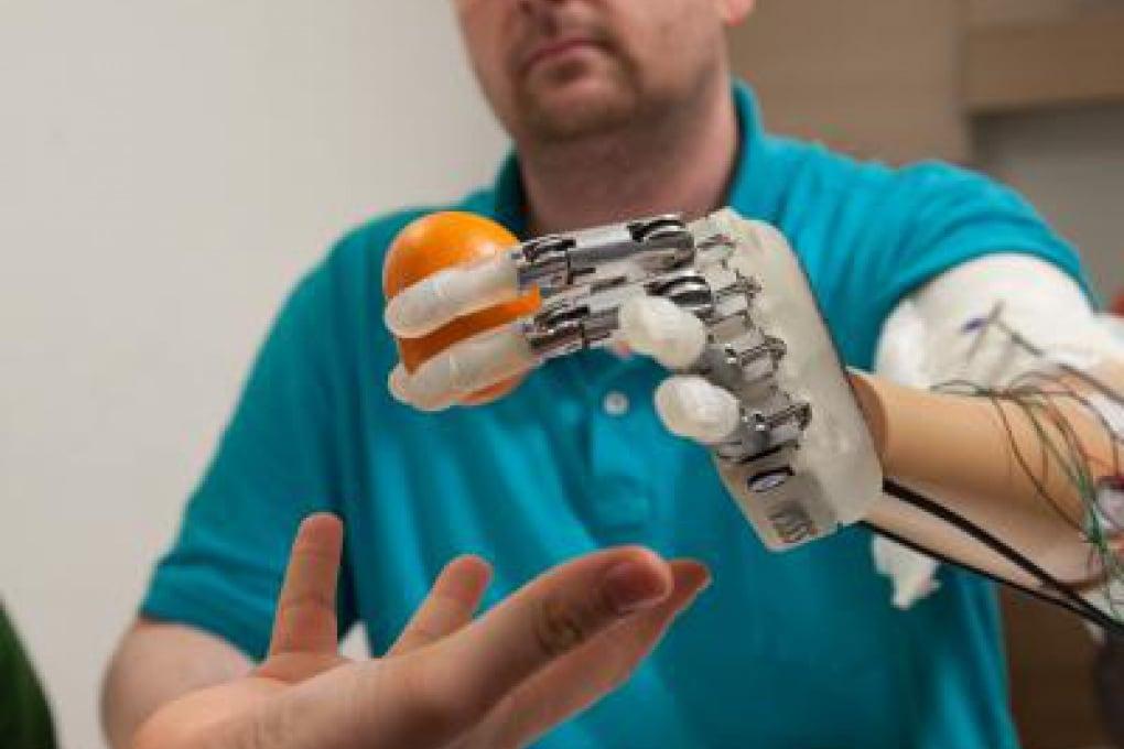 Ecco cosa si prova con una mano bionica sensibile al tatto