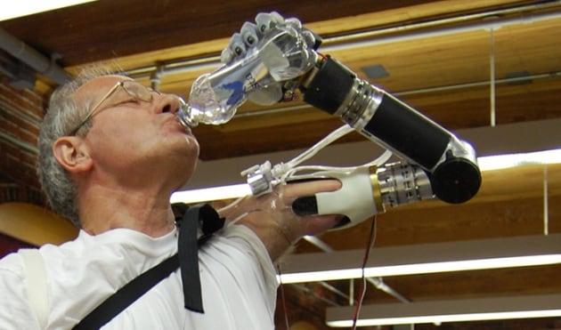 DEKA arm, la protesi robot