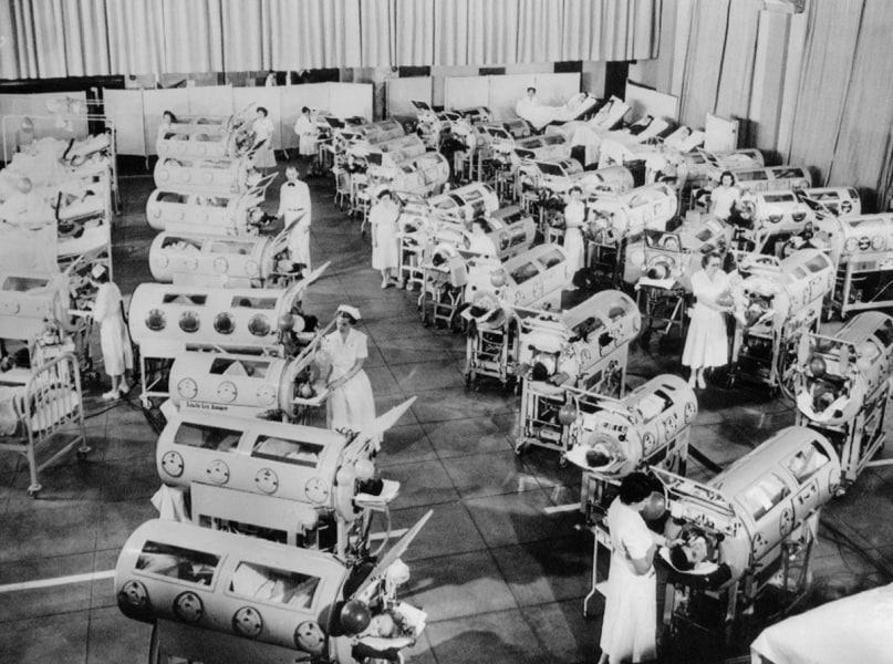 Risultati immagini per polmoni d'acciaio poliomielite