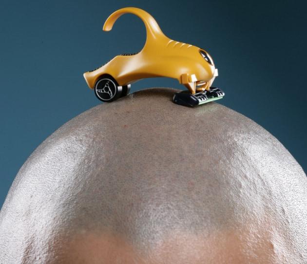 Strappo selettivo dei capelli contro la calvizie