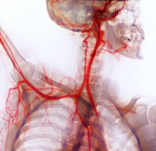 Body Worlds: i cadaveri plastificati