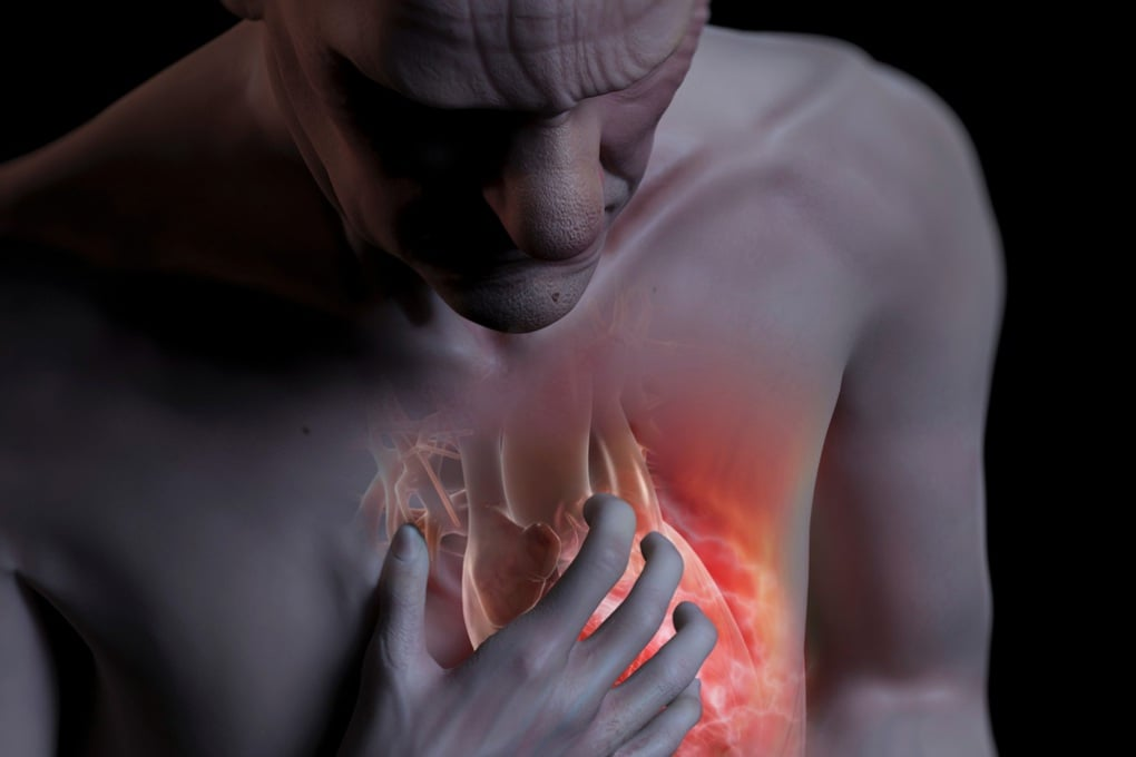 Perché gli attacchi di cuore colpiscono soprattutto al mattino?