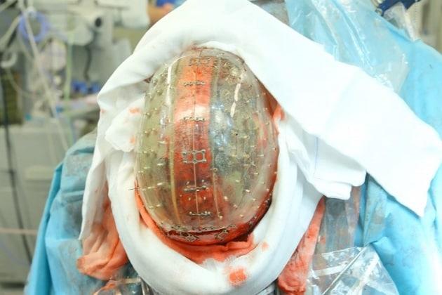 Eseguito in olanda il primo impianto di un cranio stampato in 3D
