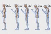 schiena-e-cellulare