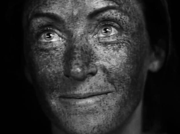 Come appare la tua pelle sotto ai raggi ultravioletti