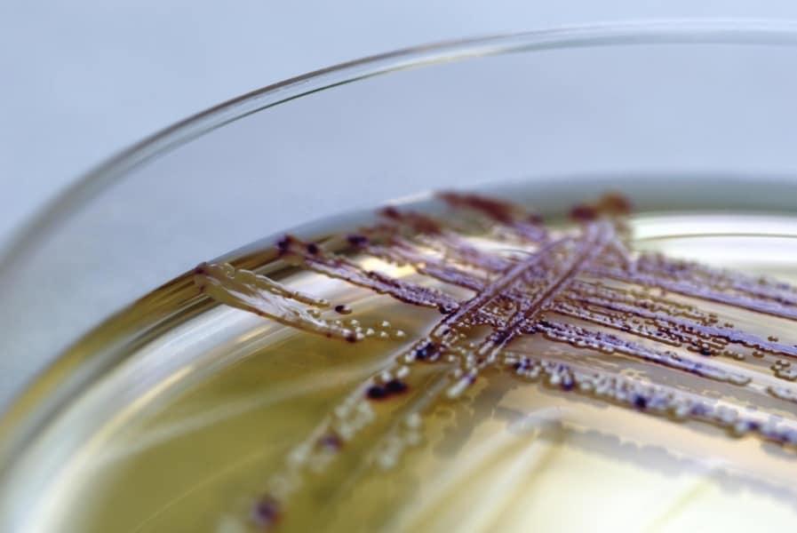 10 batteri che vivono sul tuo smartphone