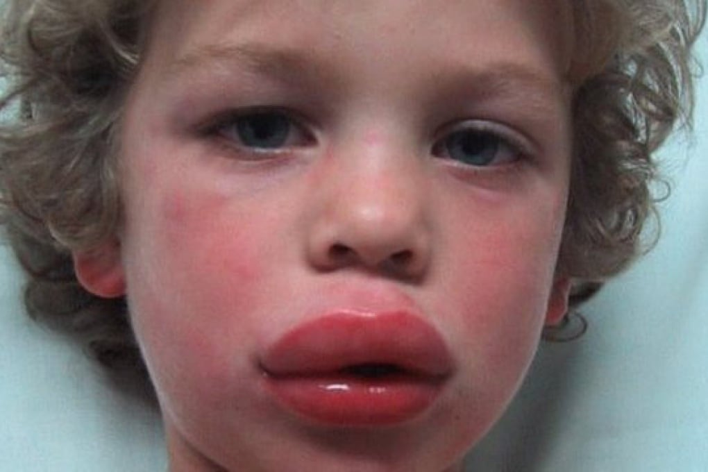 A che cosa è dovuto lo shock anafilattico?