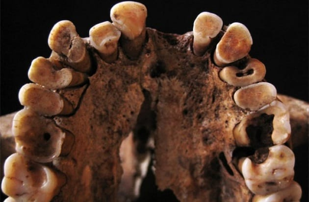 Denti cariati nell'Età della Pietra
