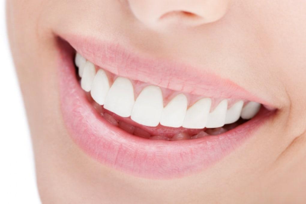 I sorrisi finti fanno male alla salute?